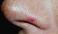 Vascular blemish on nose